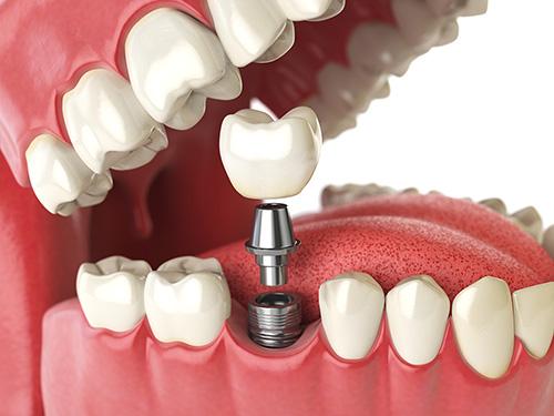 Implant500